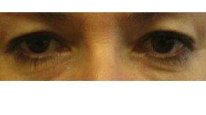 Manhattan BLEPHAROPLASTY Before 2